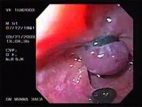 Banding of esophageal varices (4 of 17)