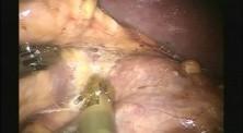 Robotic Left Adrenalectomy