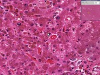 Liver - Hemochromatosis