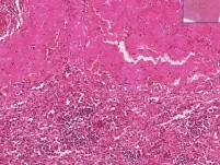 Amyloidosis - Histopathology - Spleen