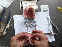 Molar Intrusion - Table Top How To - Part 2/2