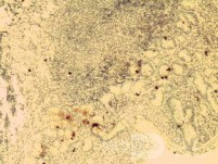 Gastric lymphoma with metastases to the duodenum (14 of 15)