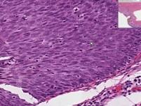 Cervix - Squamous Metaplasia