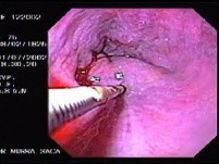 Hemorrhage due status post rubber band ligation of esophageal varices (13 of 25)