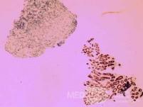 Non-Hodking Lymphoma B Cells. MALT (mucosa associated lymphoid tissue) (4 of 7)