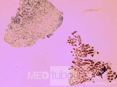 Non-Hodking Lymphoma B Cells. MALT (mucosa associated lymphoid tissue) (4 of 7)