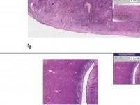 Endometrium - Senile Atrophy