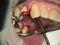 Provisional Immediate Implant After Tooth Extraction