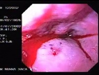 Hemorrhage due status post rubber band ligation of esophageal varices (17 of 25)