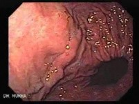 Esophageal Varices and Hiatus Hernia (2 of 3 )