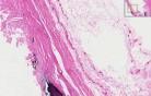 Aorta - Atherosclerosis 2
