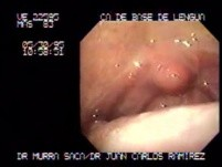 Carcinoma of the Base of the Tongue