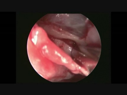 Endoscopic Identification of the Sphenopalatine Artery in the Nose ...