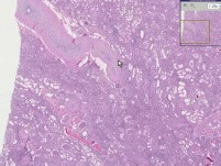 Arteries - Arterio- And Arteriolo-Sclerosis