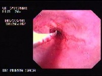 Reflux Esophagitis & Esophageal Stricture - Baloon Dilation