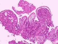 Ovarian Carcinoma Metastatic to Stomach and Duodenum (15 of 20)