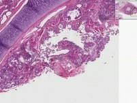 Lung, Lymph Node - Asthma