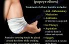 Bursitis Elbow - Video Lecture