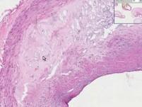 Coronary Arteries - Atherosclerosis